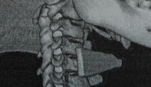 Кировские врачи извлекли осколок стекла из шеи ребенка